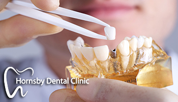 We have the best offer for dental implants in Hornsby.