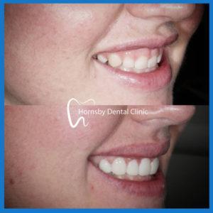 Best dentist for veneers in Hornsby