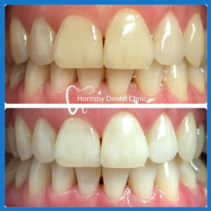 Teeth Whitening in Hornsby