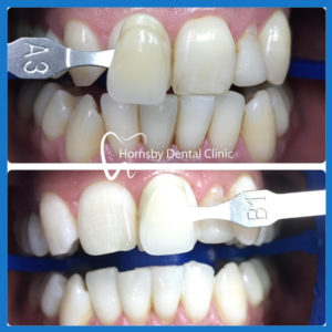 Best dentist for teeth whitening in Hornsby