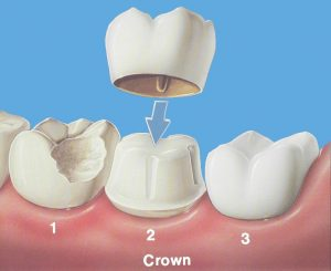 We are the best in dental crowns in Hornsby.