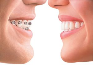 We are the best in orthodontics here in Hornsby.