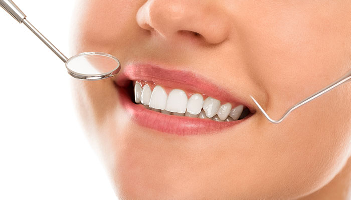 We are the best in teeth veneers in Hornsby.