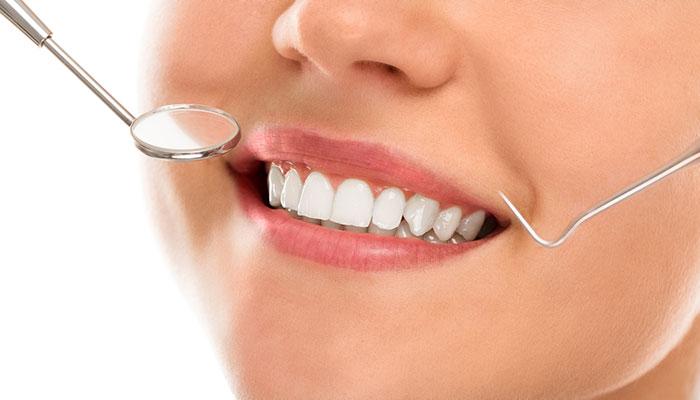 We are the best in teeth veneers in Hornsby.