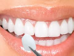 We are the best dentistry for dental veneers in Hornsby.