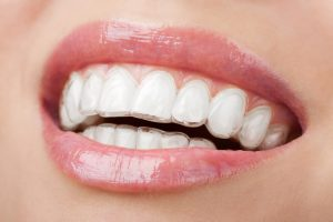 We are the best Invisalign provider in Hornsby,