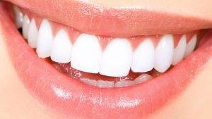 We are the best in teeth whitening here in Hornsby.