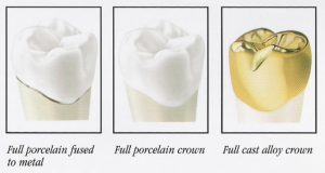 Affordable dental crowns in Hornsby.
