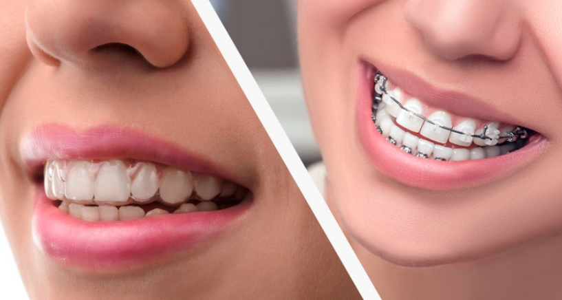 We provide braces for kids here in Hornsby.