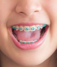 We have braces for kids here in Hornsby clinic.