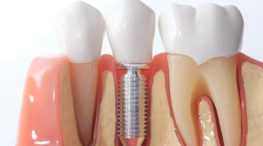 Dental implant surgery available at our clinic in Hornsby.