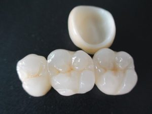 Porcelain crown cost in Hornsby.