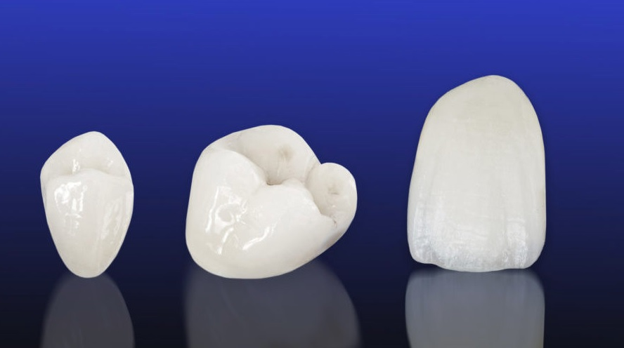 Porcelain crown cost is affordable here in our Hornsby dental clinic.