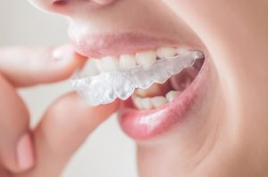 We offer affordable Invisalign in our Hornsby clinic.