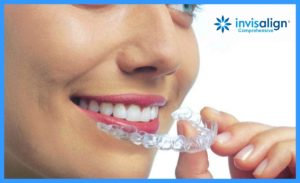 Invisalign Comprehensive