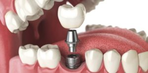 Dental implant cost in Hornsby