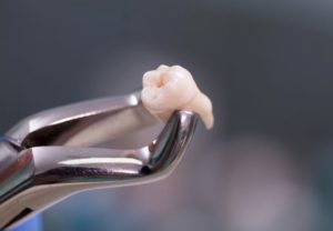 Tooth removal in Hornsby