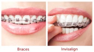 Orthodontics in Hornsby